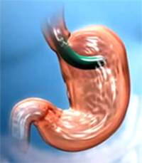 Endoscopic stomach reduction
