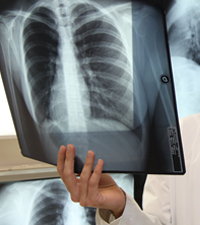 Doctor holding a chest X-ray
